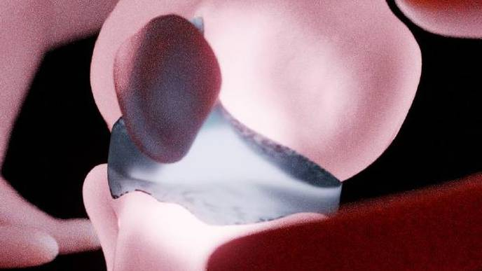 Screening Approach Opens Path to Better-Quality Joint Cartilage
