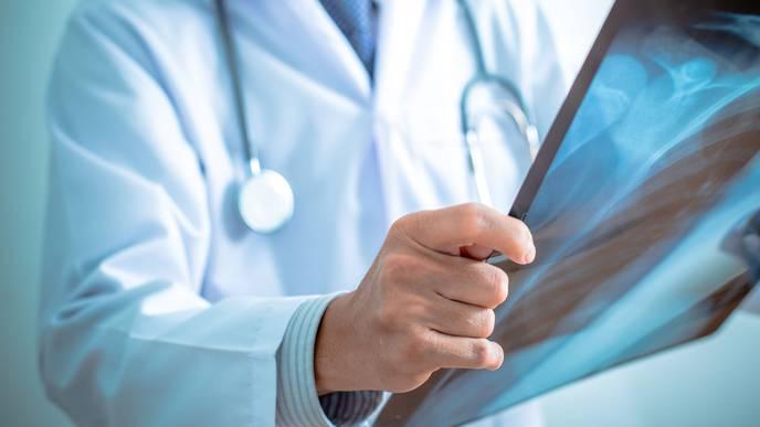 MedUni Vienna Study Enhances Understanding of Osteosarcoma Disease Mechanisms
