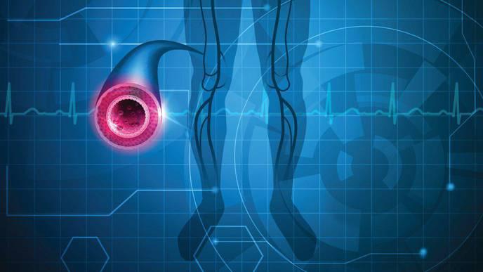 Heart Disease Medications Underused Among Hispanic/Latino Populations with PAD