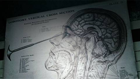 """Lobotomy: Surgery's Misguided First Take on """"Blowing Your Mind"""""""