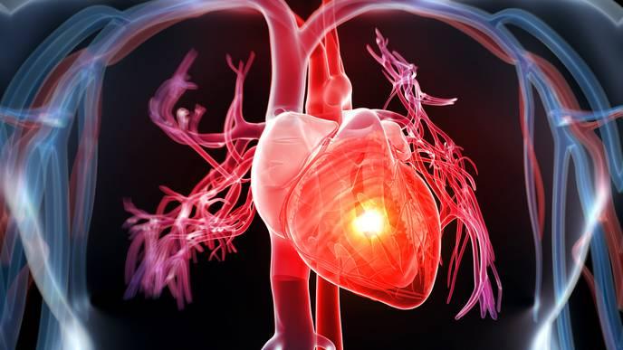Heart Disease Is World's No. 1 Killer