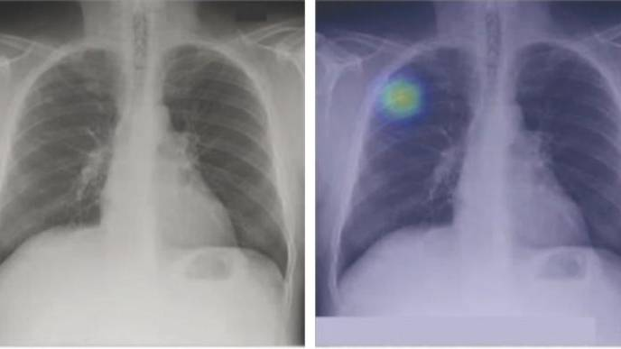 New Lung Cancer-Detecting AI Algorithm Shows Impressive Results
