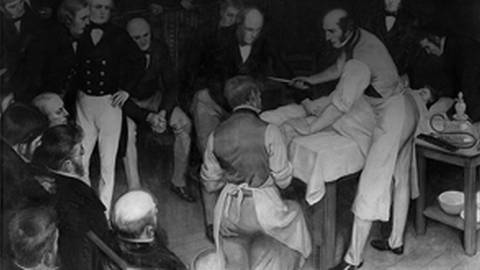 Don't Hesitate...Amputate! The Surgical Legacy of Robert Liston