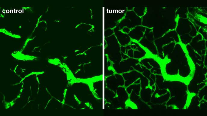 Researchers Observe Early Stages of Blood Vessel Development in Lymph Node Tumors