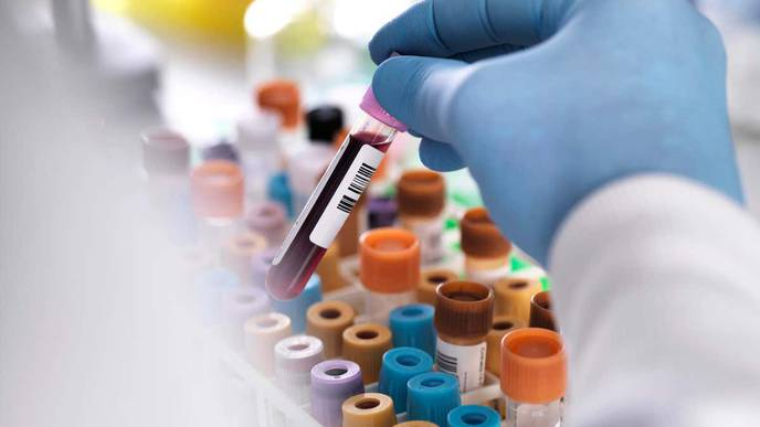 Doctors Say Experimental Treatment May Have Eliminated Man's HIV