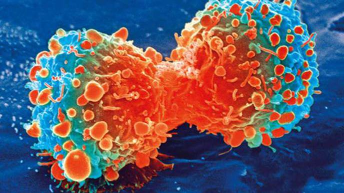 Largest Study of Prostate Cancer Genomics in Black Americans IDs Targets for Therapies