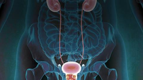 Advancing Interdisciplinary Care in Prostate Cancer: Clinical Updates for Urology and Oncology Healthcare Professionals